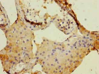 Immunohistochemistry (Formalin/PFA-fixed paraffin-embedded sections) - Anti-DUOX1 antibody (ab230209)