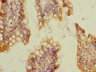 Immunohistochemistry (Formalin/PFA-fixed paraffin-embedded sections) - Anti-SOAT 2 antibody (ab230210)
