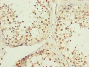 Immunohistochemistry (Formalin/PFA-fixed paraffin-embedded sections) - Anti-MRPP3 antibody (ab230211)
