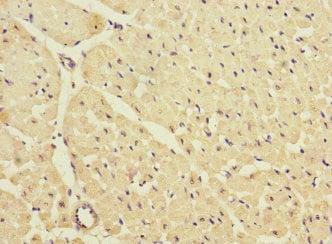 Immunohistochemistry (Formalin/PFA-fixed paraffin-embedded sections) - Anti-KIR2.3/HIR antibody (ab230214)