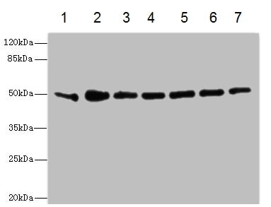 Western blot - Anti-KIR2.3/HIR antibody (ab230214)
