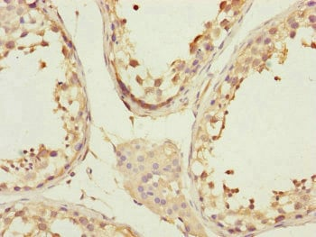 Immunohistochemistry (Formalin/PFA-fixed paraffin-embedded sections) - Anti-CCHCR1 antibody (ab230223)