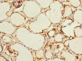 Immunohistochemistry (Formalin/PFA-fixed paraffin-embedded sections) - Anti-ADCY4 antibody (ab230228)