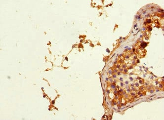 Immunohistochemistry (Formalin/PFA-fixed paraffin-embedded sections) - Anti-PHF11 antibody (ab230233)