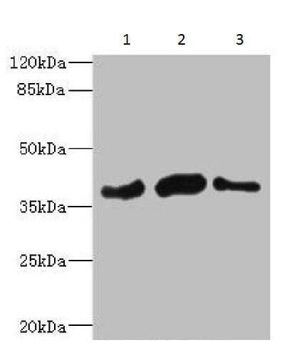 Western blot - Anti-PHF11 antibody (ab230233)