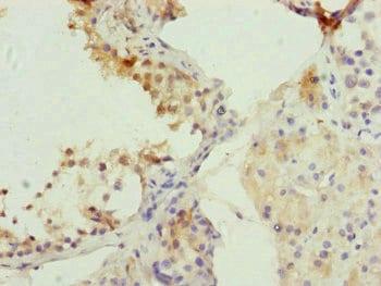 Immunohistochemistry (Formalin/PFA-fixed paraffin-embedded sections) - Anti-CDC45L antibody (ab230241)