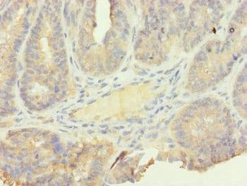 Immunohistochemistry (Formalin/PFA-fixed paraffin-embedded sections) - Anti-SFI1 antibody (ab230242)