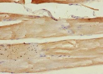 Immunohistochemistry (Formalin/PFA-fixed paraffin-embedded sections) - Anti-PLA2G4C antibody (ab230250)