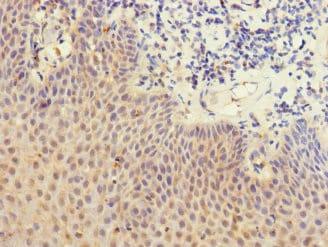 Immunohistochemistry (Formalin/PFA-fixed paraffin-embedded sections) - Anti-LY75/DEC-205 antibody (ab230251)