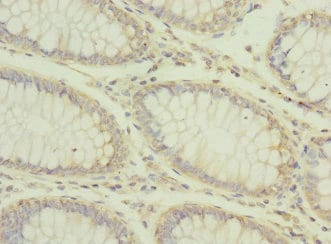 Immunohistochemistry (Formalin/PFA-fixed paraffin-embedded sections) - Anti-Carboxypeptidase D/CPD antibody (ab230252)