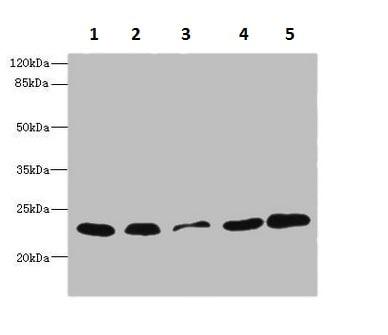 Western blot - Anti-TIMM23/TIM23 antibody (ab230253)