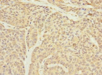Immunohistochemistry (Formalin/PFA-fixed paraffin-embedded sections) - Anti-TIMM23/TIM23 antibody (ab230253)