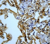 Immunohistochemistry (Formalin/PFA-fixed paraffin-embedded sections) - Anti-Caveolin-1 antibody [E249] - BSA and Azide free (ab230262)