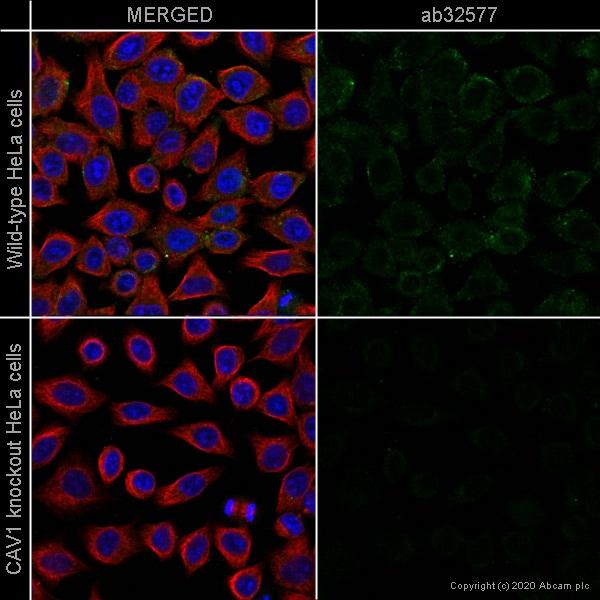 Immunocytochemistry - Anti-Caveolin-1 antibody [E249] - BSA and Azide free (ab230262)