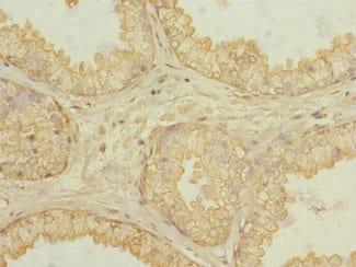 Immunohistochemistry (Formalin/PFA-fixed paraffin-embedded sections) - Anti-KLHL13 antibody (ab230264)