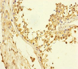 Immunohistochemistry (Formalin/PFA-fixed paraffin-embedded sections) - Anti-XPO6 antibody (ab230269)