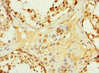 Immunohistochemistry (Formalin/PFA-fixed paraffin-embedded sections) - Anti-Hhip antibody (ab230271)