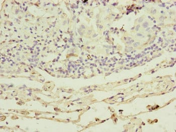 Immunohistochemistry (Formalin/PFA-fixed paraffin-embedded sections) - Anti-RARS2 antibody (ab230274)