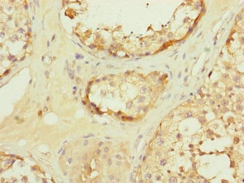 Immunohistochemistry (Formalin/PFA-fixed paraffin-embedded sections) - Anti-TOMM34 antibody (ab230277)