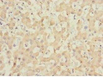 Immunohistochemistry (Formalin/PFA-fixed paraffin-embedded sections) - Anti-ADAMTSL4 antibody (ab230286)