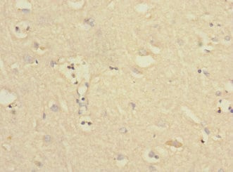 Immunohistochemistry (Formalin/PFA-fixed paraffin-embedded sections) - Anti-PTPN18 antibody (ab230300)