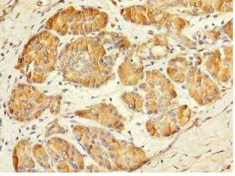 Immunohistochemistry (Formalin/PFA-fixed paraffin-embedded sections) - Anti-Mesp1 antibody (ab230308)