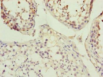 Immunohistochemistry (Formalin/PFA-fixed paraffin-embedded sections) - Anti-SI1 antibody (ab230316)
