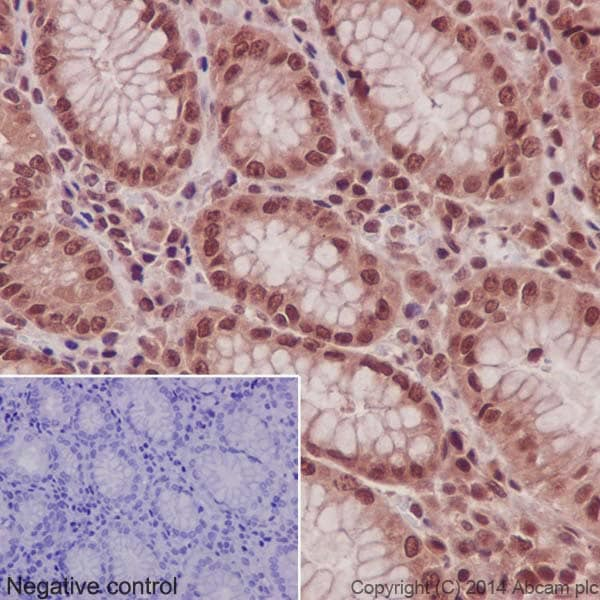 Immunohistochemistry (Formalin/PFA-fixed paraffin-embedded sections) - Anti-NADPH oxidase 4 antibody [UOTR1B492] - BSA and Azide free (ab230322)
