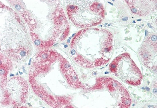 Immunohistochemistry (Formalin/PFA-fixed paraffin-embedded sections) - Anti-YTHDF1 antibody (ab230330)