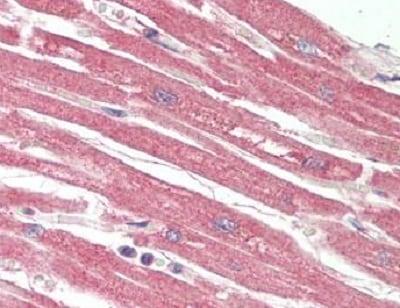 Immunohistochemistry (Formalin/PFA-fixed paraffin-embedded sections) - Anti-Poliovirus Receptor/PVR antibody (ab230338)