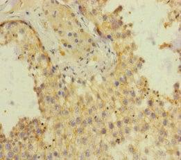 Immunohistochemistry (Formalin/PFA-fixed paraffin-embedded sections) - Anti-SH3GL3 antibody (ab230350)