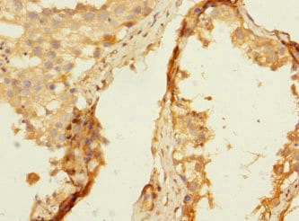 Immunohistochemistry (Formalin/PFA-fixed paraffin-embedded sections) - Anti-HNT antibody (ab230351)