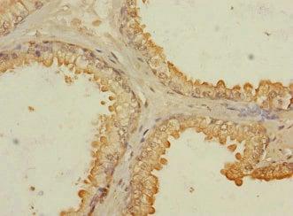 Immunohistochemistry (Formalin/PFA-fixed paraffin-embedded sections) - Anti-RASSF6 antibody (ab230353)