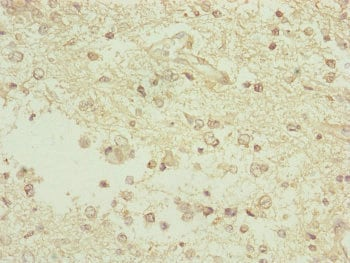 Immunohistochemistry (Formalin/PFA-fixed paraffin-embedded sections) - Anti-TAM41 antibody (ab230359)