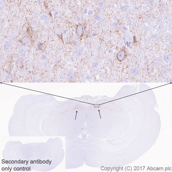 Immunohistochemistry (Formalin/PFA-fixed paraffin-embedded sections) - Anti-DLK-1 antibody [EPR19830] - BSA and Azide free (ab230380)