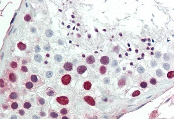 Immunohistochemistry (Formalin/PFA-fixed paraffin-embedded sections) - Anti-HMGA1 antibody (ab230384)