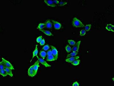 Immunocytochemistry/ Immunofluorescence - Anti-CCDC41 antibody (ab230386)