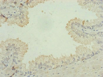 Immunohistochemistry (Formalin/PFA-fixed paraffin-embedded sections) - Anti-C9orf23 antibody (ab230389)
