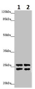 Western blot - Anti-HMGE antibody (ab230391)