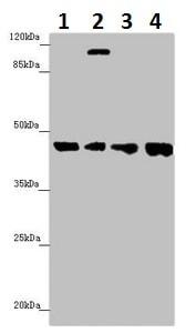 Western blot - Anti-FBXO22 antibody (ab230395)