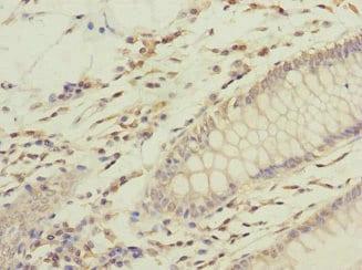 Immunohistochemistry (Formalin/PFA-fixed paraffin-embedded sections) - Anti-GFM2 antibody (ab230405)