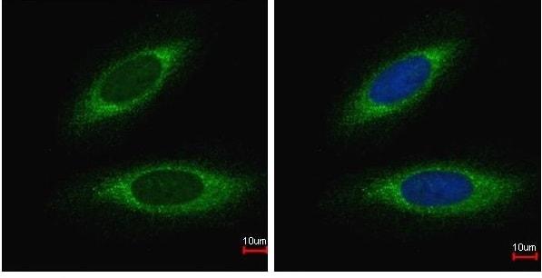 Immunocytochemistry/ Immunofluorescence - Anti-GST3 / GST pi antibody - N-terminal (ab230419)