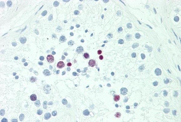 Immunohistochemistry (Formalin/PFA-fixed paraffin-embedded sections) - Anti-POU5F1B antibody (ab230429)