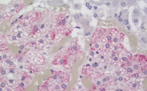 Immunohistochemistry (Formalin/PFA-fixed paraffin-embedded sections) - Anti-EMP-1 antibody - N-terminal (ab230445)