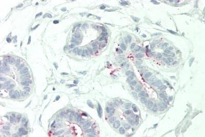 Immunohistochemistry (Formalin/PFA-fixed paraffin-embedded sections) - Anti-B7-H6 antibody (ab230450)