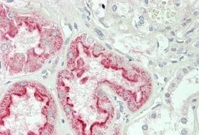 Immunohistochemistry (Formalin/PFA-fixed paraffin-embedded sections) - Anti-Folate Binding Protein/FBP antibody (ab230469)