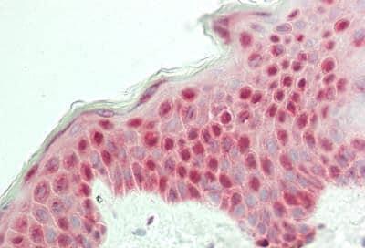 Immunohistochemistry (Formalin/PFA-fixed paraffin-embedded sections) - Anti-RPLP0 antibody (ab230474)