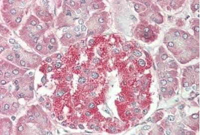 Immunohistochemistry (Formalin/PFA-fixed paraffin-embedded sections) - Anti-MYO6 antibody (ab230478)