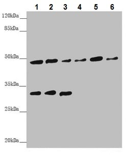 Western blot - Anti-BCS1L antibody (ab230479)