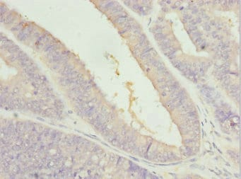 Immunohistochemistry (Formalin/PFA-fixed paraffin-embedded sections) - Anti-ZFAND3 antibody (ab230485)